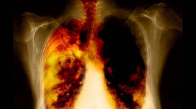 فحص الرئة الدوري ضروري للمدخنين الحاليين والسابقين 160 ألف حالة وفاة بسرطان الرئة سنوياً في الولايات المتحدة