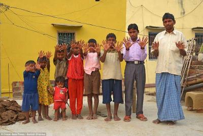 بالصور.. عائلة هندية بـ 600 إصبع حيرت العلماء