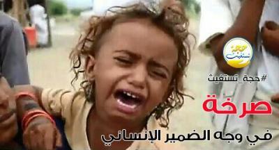 150 ألف طفل يمني بحاجة للمساعدات بمحافظة حجة