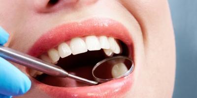 """""""علاج جديد"""" قد يضع حدا لعمليات حشو الأسنان"""