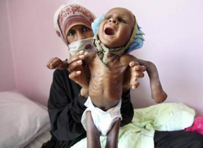 الموت جوعا يتهدد أطفال  4 دول منها اليمن