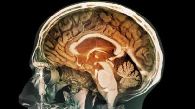 كشف جديد يقلب الموازين عن كيفية تكون الذاكرة