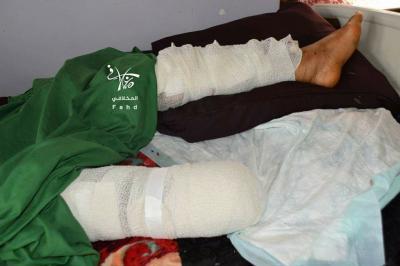 يمني يصرّ على الارتباط بعروس فقدت ساقها قبل 3 أيام من حفل الزفاف ( صوره)