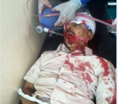مقتل شاب أمام مرأى الناس بعد أن تم إخراجه من الحافلة في الضالع