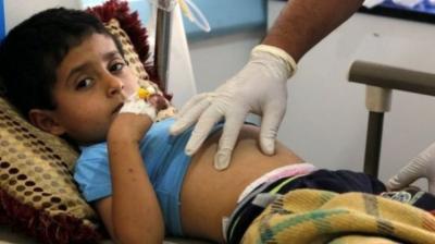 إنتشار وباء جديد باليمن والامم المتحدة تحذر