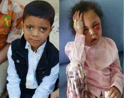 الطفلة بثينة والطفل أحمد وإنتقائية الناشطين للجرائم  !