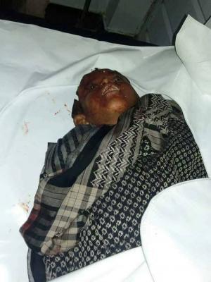 مقتل 4 أطفال وجرح 10 آخرين في قصف مدفعي للحوثيين وقوات صالح في تعز