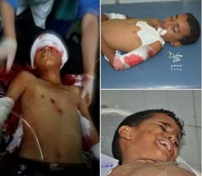 حقوق الانسان تقول بأن مجزرة الحوثيين بحق الاطفال في تعز جريمة حرب ضد الإنسانية