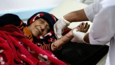 """""""أطباء بلا حدود"""" تغلق معظم عيادات الكوليرا في اليمن"""