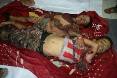 استشهاد واصابة 8 اطفال بتعز في مجزرة جديدة للحوثيين ( الأسماء)