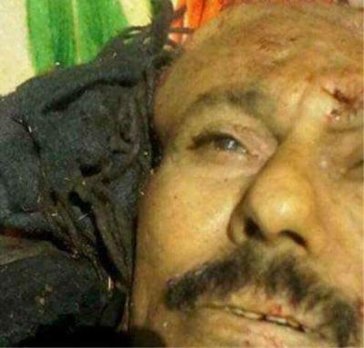 """الحوثيون يضعون شرطاً لتسليم جثة الرئيس السابق """" صالح """""""