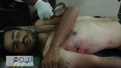 مقتل شخصين وإصابة أربعة آخرين  بمديرية الرجم  محافظة المحويت نتيجة خلاف على جبل ( صور القتلى )