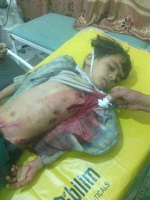 ليله ساخنه بعمران واشتباكات عنيفه على مداخل المدينة ومقتل عدداً من المدنيين والأطفال وقطع خط عمران - صنعاء ( صور)