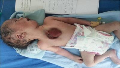 في حالة غريبة ونادرة .. ولادة طفل بقلب خارج القفص الصدري بذمار( صورة)