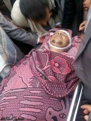 وزارة الإعلام تدين إغتيال الإعلامي عبد الرحمن حميد الدين واستهداف المخرج إبراهيم الأبيض ( صورة القتيل)