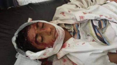 (بالأسماء) مصدر أمني بشرطة محافظة عمران  يروي تفاصيل مقتل 7 مواطنين وإصابة 12 آخرين بانفجارعبوات ناسفة أثناء مسيرة لجماعة الحوثي