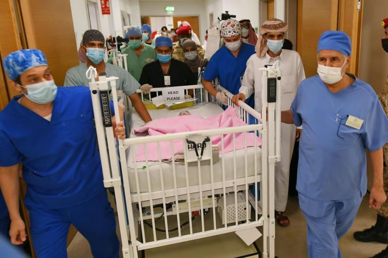 الإعلان عن نجاح عملية فصل التوأم الطفيلي اليمني في السعودية
