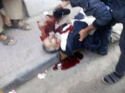 عاجل : إغتيال الدكتور محمد عبد الملك المتوكل بصنعاء ( صوره)