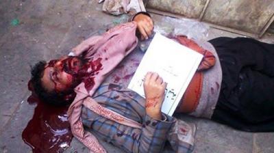 إغتيال شيخ قبلي موالي للحوثيين وسط صنعاء ( صورة)