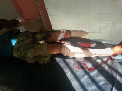 ( صور) إرتفاع عدد قتلى الحوثيين بذمار بسبب تفكيك العبوة الناسفة التي إنفجرت بجوار دار الضيافة