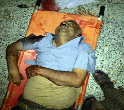 مصدر عسكري يكشف عن تفاصيل هامة حول أسباب إغتيال الحوثيين للعميد الردفاني