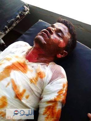 صورة - للعامل الذي أصيب نتيجة حريق محطة الوقود بمحافظة المحويت ظهر اليوم