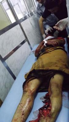 ( بالصور ) الحوثيون والقوات الموالية لهم يرتكبون مجزرة بشعة بتعز