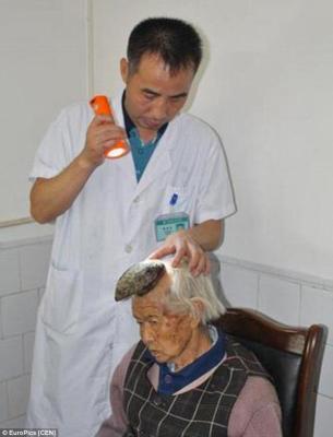 شاهد بالصور في حالة نادرة إمرأة ينبت لها قرن في رأسها