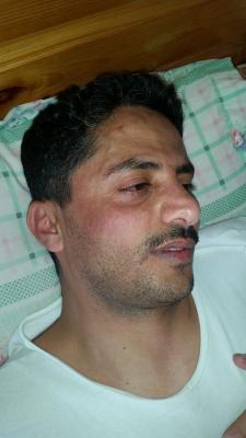 علي البخيتي يتعرض للضرب من نساء حوثيات ويروي الحادثة ( صور)
