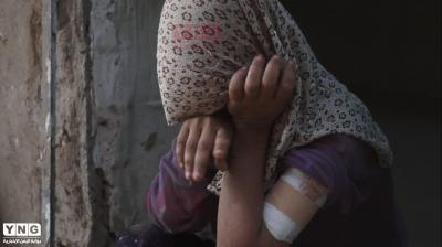 """هذا ما فعله الحوثيون بالطفلة """"هنود"""" وجعلوا حياتها أشبه بالجحيم"""