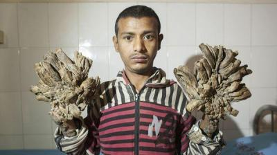 """مرض جلدي نادر يتسبب في ظهور """"الرجل الشجرة"""" ( صور)"""
