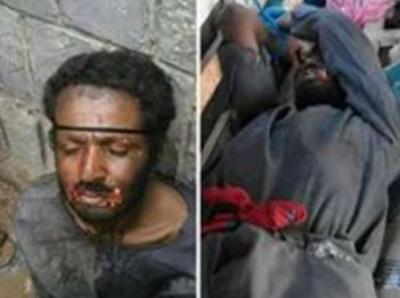 إلقاء القبض على رجل مصاص الدماء بالحديدة .. تفاصيل مُرعبة ( صور)