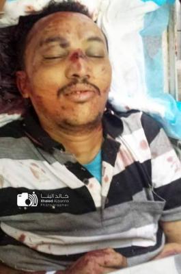 تفاصيل ما حدث لقائد المقاومة بتعز الشيخ حمود المخلافي ومقتل المصور المرافق له وجرح صحفيين آخرين ( الأسماء - صور)