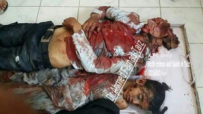 شاهد بالصور .. الحوثيون يرتكبون مجزرة بحق المدنيين في تعز بينهم نساء وأطفال