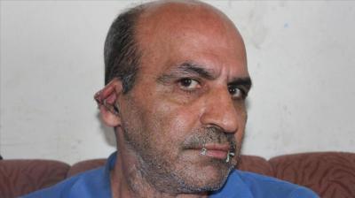 لاجئ إيراني بتركيا يخيط فمه وأذنيه ويهدد بأنه سيخيط عينيه إذا لم يستجاب لطلبه ( صوره)
