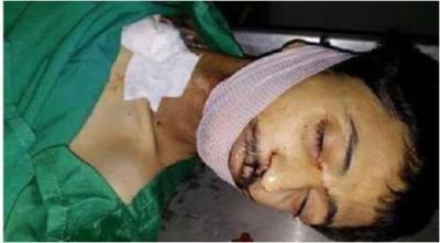وفاة مُحتجز في سجون الحوثي بسبب التعذيب ( صوره)