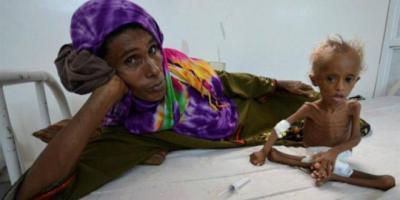 معلومات صادمة .. اليمن يتصدر الأول عربياً في مؤشر الجوع والسادس عالمياً