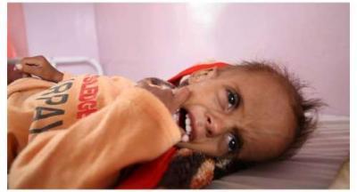 اليونيسيف : أكثر من 10 آلاف طفل يمنى ماتوا بسبب انخفاض الرعاية الصحية